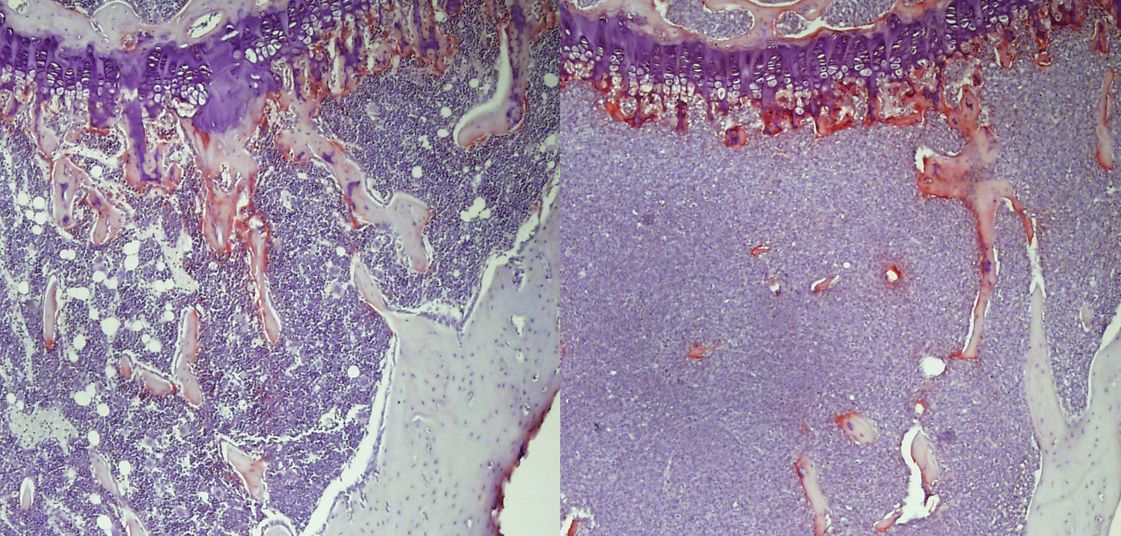 Tibia from control (left) and myeloma-bearing (right) mice, with osteoclast activity stained red.